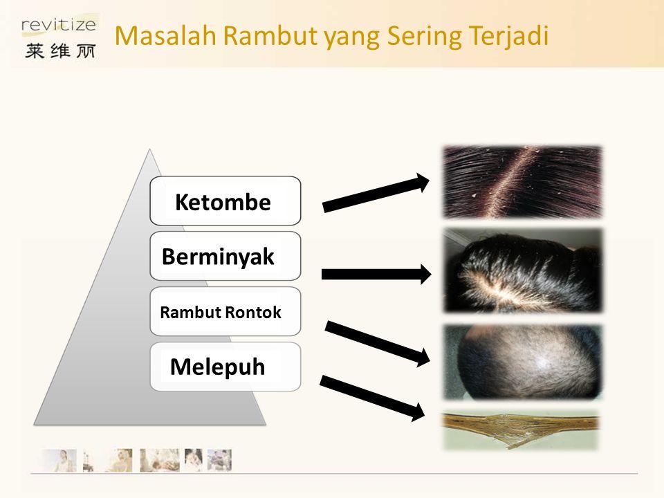 Ketombe Berminyak Rambut Rontok Melepuh Masalah Rambut yang Sering Terjadi