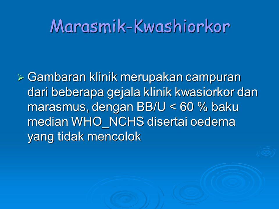 Marasmik-Kwashiorkor  Gambaran klinik merupakan campuran dari beberapa gejala klinik kwasiorkor dan marasmus, dengan BB/U < 60 % baku median WHO_NCHS