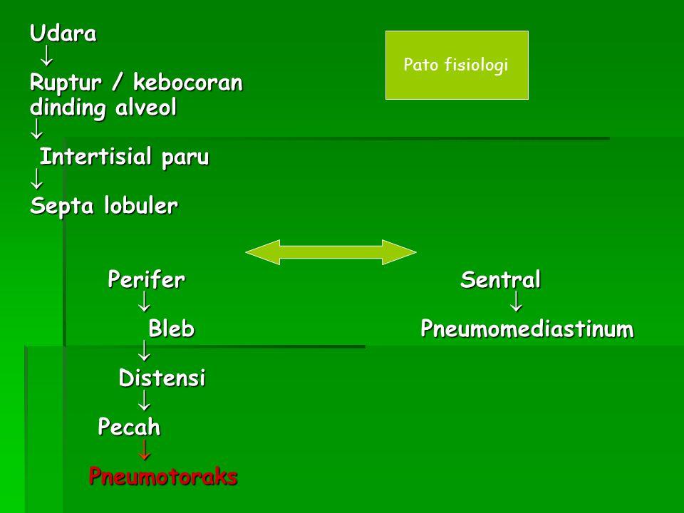 Udara  Ruptur / kebocoran dinding alveol  Intertisial paru Intertisial paru Septa lobuler Perifer Sentral Perifer Sentral     Bleb Pneumomedias