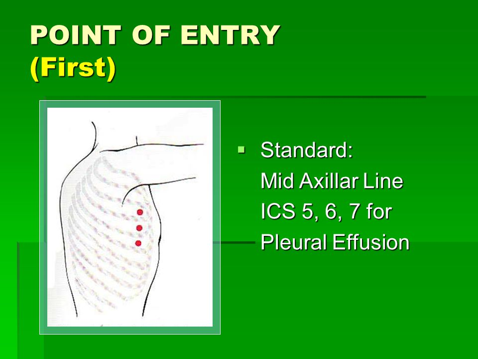 POINT OF ENTRY (First)  Standard: Mid Axillar Line ICS 5, 6, 7 for Pleural Effusion