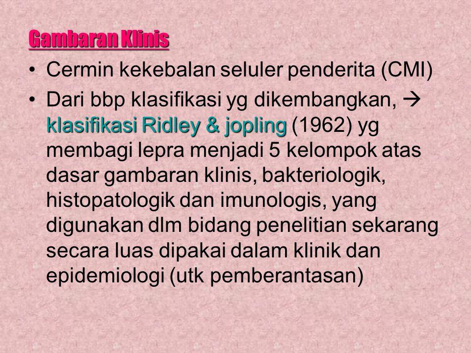 Gambaran Klinis Cermin kekebalan seluler penderita (CMI) klasifikasi Ridley & joplingDari bbp klasifikasi yg dikembangkan,  klasifikasi Ridley & jopl