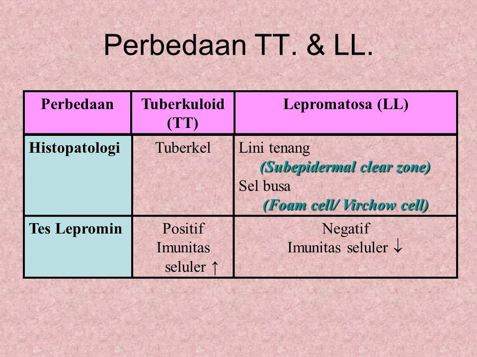 Perbedaan TT. & LL. HistopatologiTuberkelLini tenang (Subepidermal clear zone) Sel busa (Foam cell/ Virchow cell) Tes LeprominPositif Imunitas seluler