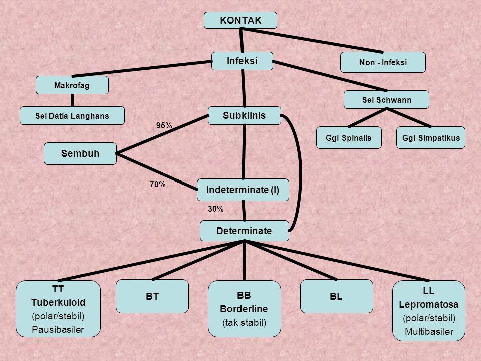 Perbedaan TT dan LL PerbedaanTuberkuloid (TT) Lepromatosa (LL) Jumlah lesi1/ bbrpBanyak EfloresensiMakula/ plakatPapel, nodul & infiltrat DistribusiAsimetrisSimetris Permukaan Lesi Lebih kasarLebih halus dan mengkilap Tepi lesiBatas jelasBatas tak jelas AnestesiJelas stad diniTak jelas, biasa stad lanjut KontrakturSering stad diniTerutama stad lanjut BakterioskopiBTA – atau sedikit BTA banyak