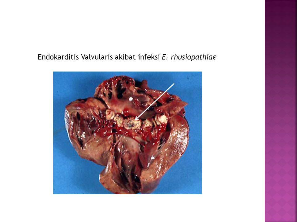 Endokarditis Valvularis akibat infeksi E. rhusiopathiae
