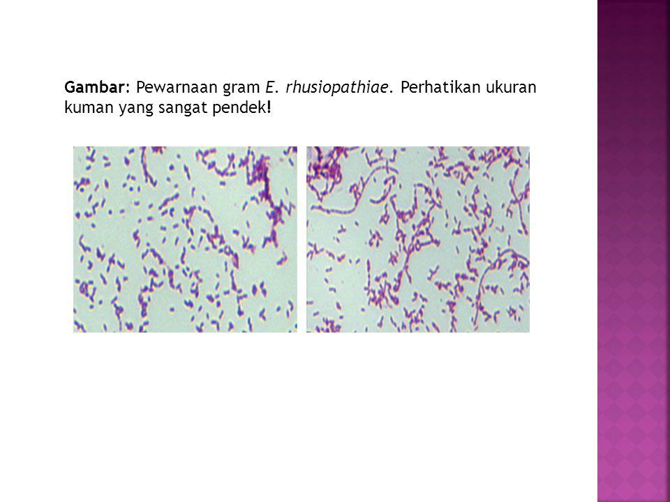 Gambar: Pewarnaan gram E. rhusiopathiae. Perhatikan ukuran kuman yang sangat pendek!