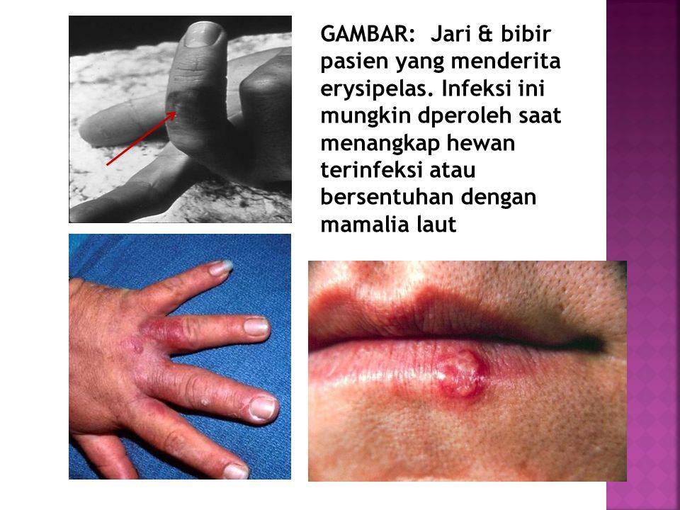 GAMBAR: Jari & bibir pasien yang menderita erysipelas. Infeksi ini mungkin dperoleh saat menangkap hewan terinfeksi atau bersentuhan dengan mamalia la