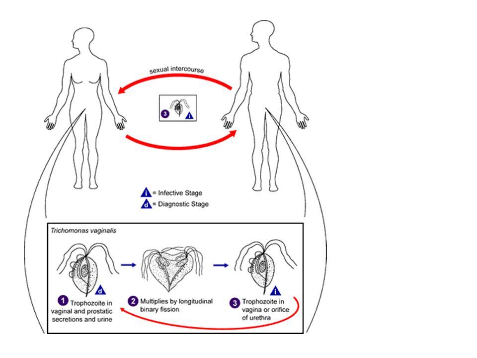 93. Trikomoniasis Infeksi saluran urogenital bagian bawah oleh Trichomonas vaginalis, bisa bersifat akut/kronik, penularan biasanya melalui hubungan s