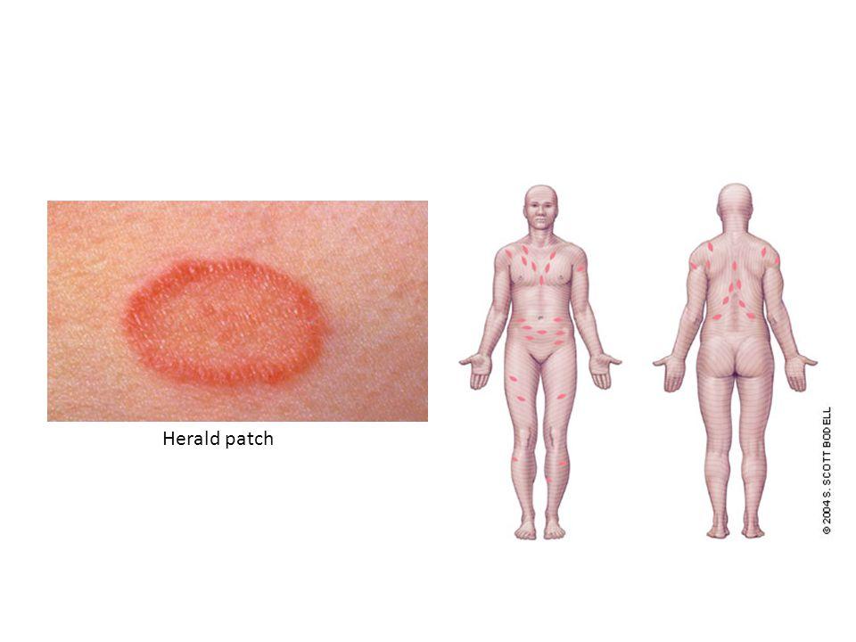Pitiriasis rosea Dermatitis eritroskuamosa yang disebabkan oleh infeksi virus (self-limiting disease) Bentuk klinis: – Dimulai dengan lesi inisial ber