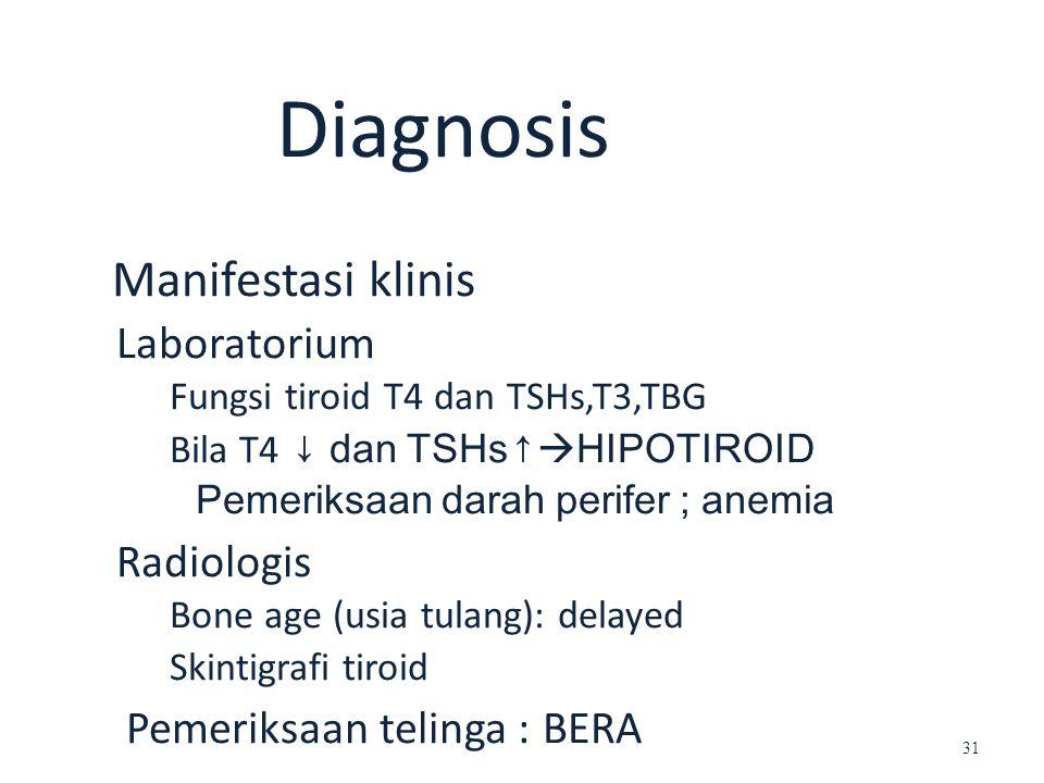 Diagnosis Manifestasi klinis Laboratorium Fungsi tiroid T4 dan TSHs,T3,TBG Bila T4 ↓ dan TSHs↑  HIPOTIROID Pemeriksaan darah perifer ; anemia Radiolo