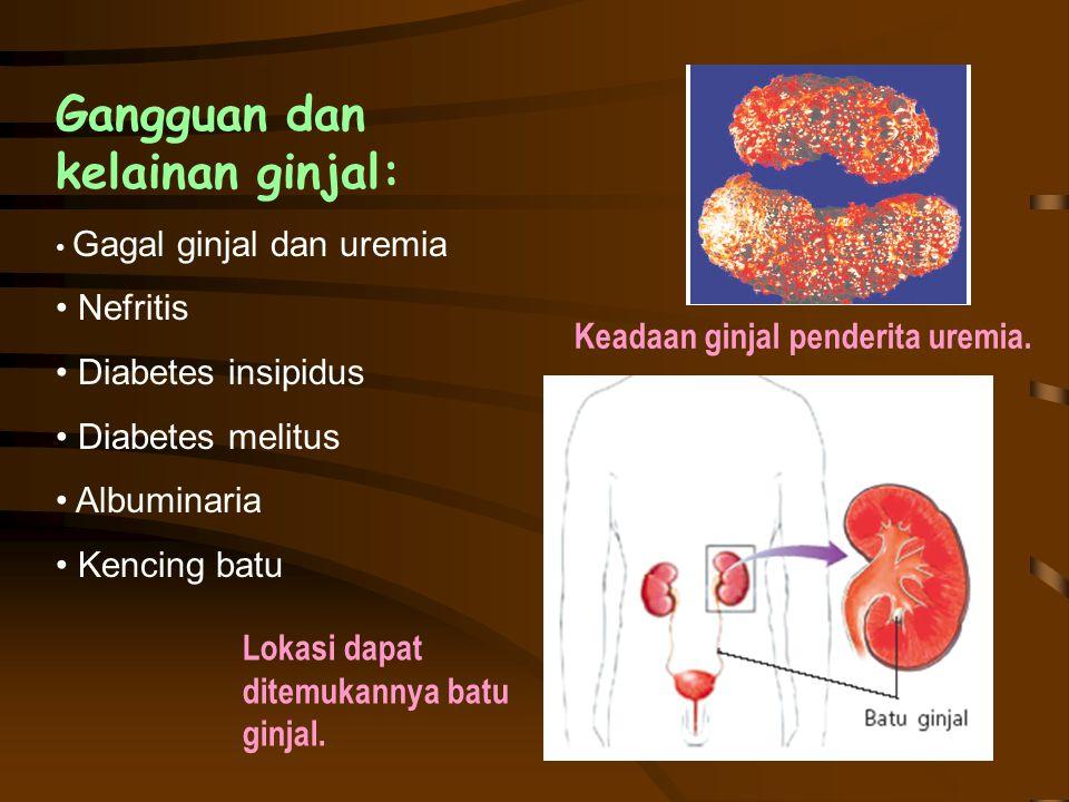 Lokasi dapat ditemukannya batu ginjal. Gangguan dan kelainan ginjal: Gagal ginjal dan uremia Nefritis Diabetes insipidus Diabetes melitus Albuminaria