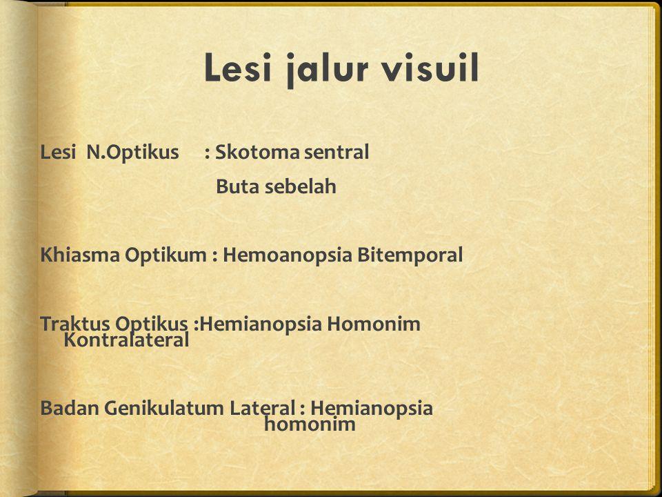 Lesi jalur visuil Lesi N.Optikus : Skotoma sentral Buta sebelah Khiasma Optikum : Hemoanopsia Bitemporal Traktus Optikus :Hemianopsia Homonim Kontrala