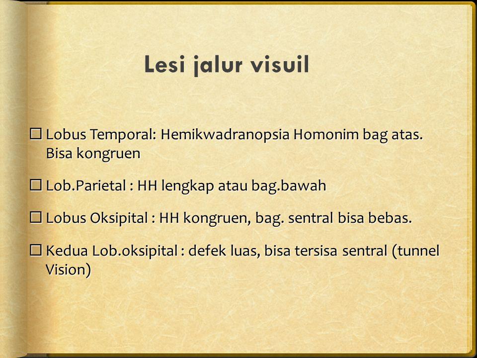 Lesi jalur visuil  Lobus Temporal: Hemikwadranopsia Homonim bag atas. Bisa kongruen  Lob.Parietal : HH lengkap atau bag.bawah  Lobus Oksipital : HH