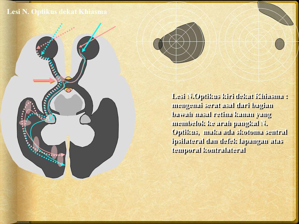 Lesi N. Optikus dekat Khiasma Lesi N.Optikus kiri dekat Khiasma : mengenai serat asal dari bagian bawah nasal retina kanan yang membelok ke arah pangk