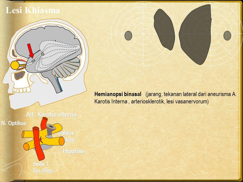 Lesi Khiasma Art. Karotis interna Traktus optikus N. Optikus Hipofise Sella T. Sin.Sfen. Hemianopsi binasal (jarang, tekanan lateral dari aneurisma A.