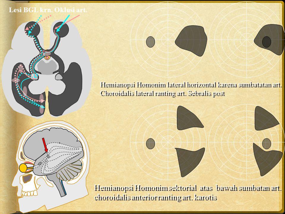 Hemianopsi Homonim lateral horizontal karena sumbatatan art. Choroidalis lateral ranting art. Sebralis post Lesi BGL krn. Oklusi art. Hemianopsi Homon