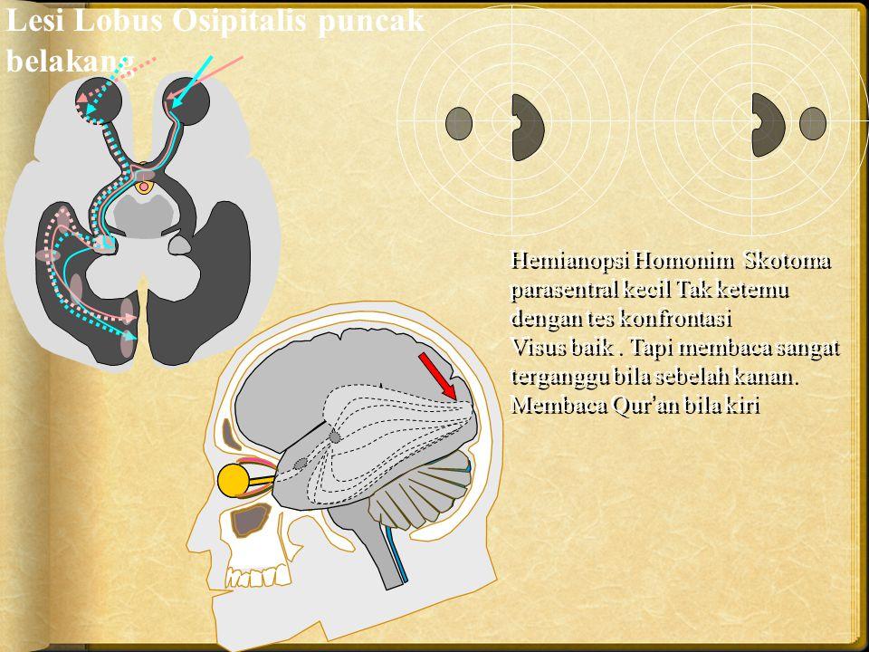 Hemianopsi Homonim Skotoma parasentral kecil Tak ketemu dengan tes konfrontasi Visus baik. Tapi membaca sangat terganggu bila sebelah kanan. Membaca Q