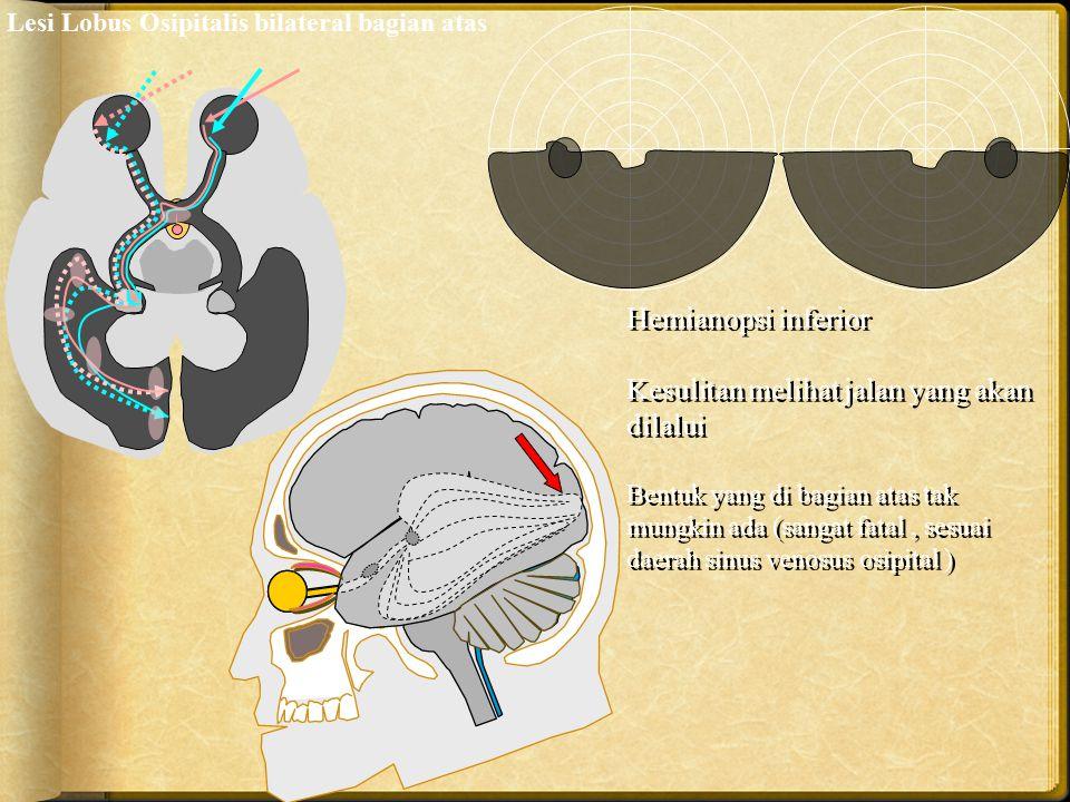Hemianopsi inferior Kesulitan melihat jalan yang akan dilalui Bentuk yang di bagian atas tak mungkin ada (sangat fatal, sesuai daerah sinus venosus os