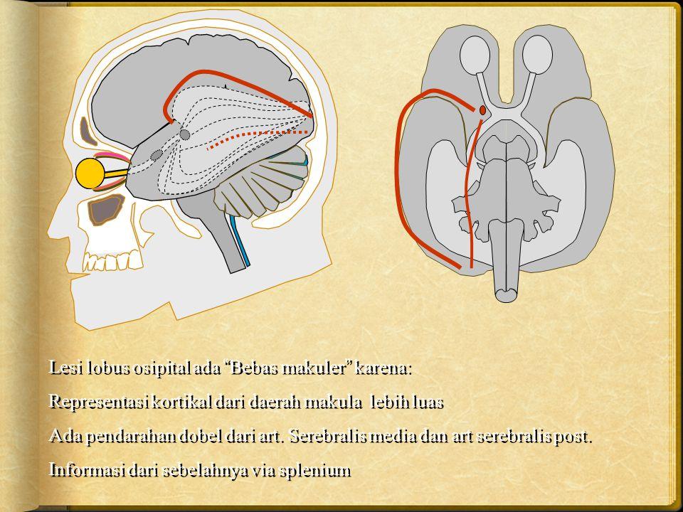 """Lesi lobus osipital ada """"Bebas makuler"""" karena: Representasi kortikal dari daerah makula lebih luas Ada pendarahan dobel dari art. Serebralis media da"""