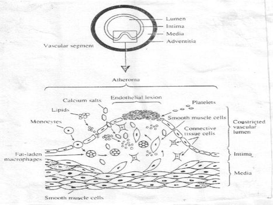 Gejela Klinis - Sangat bervariasi tergantung ringan beratnya kelainan - Tergantung target organ yang dikenai - Bila mengenai pembuluh darah otak bisa terjadi - TIA (Transient Ischemic Attack) - RIND (Reversible Ischemic Neurologic Defisit) - Trombosis serebri