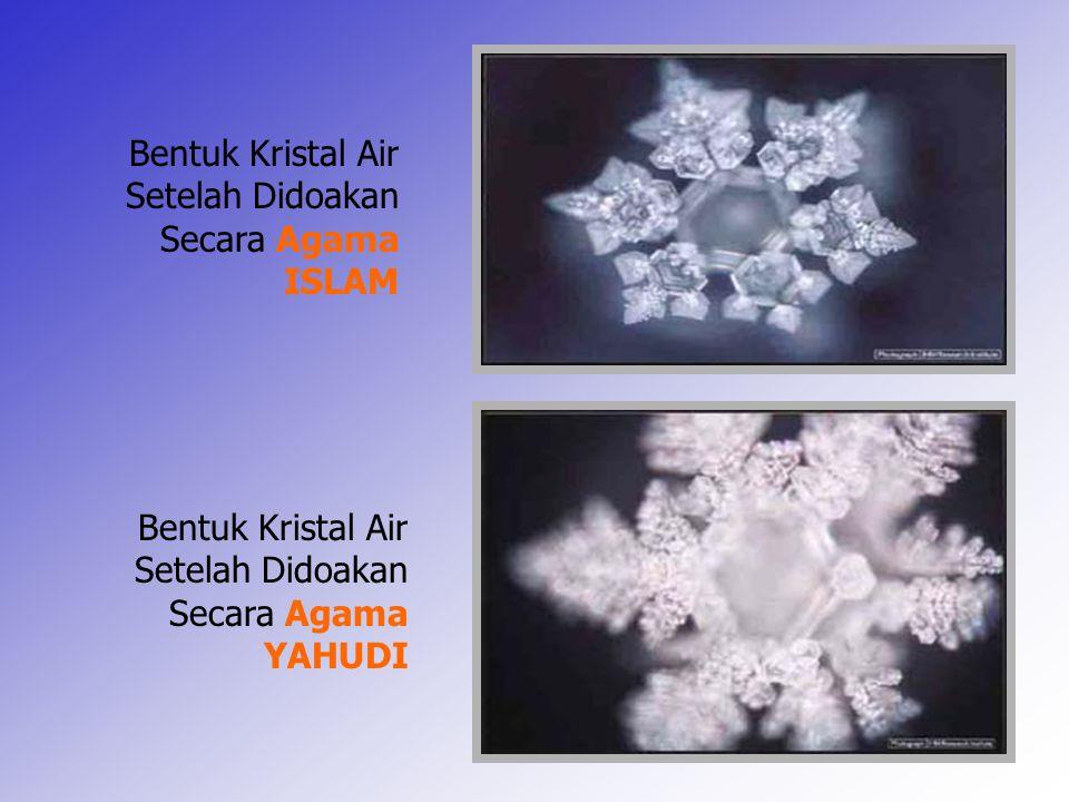 14 Bentuk Kristal Air Setelah Didoakan Secara Agama YAHUDI Bentuk Kristal Air Setelah Didoakan Secara Agama ISLAM