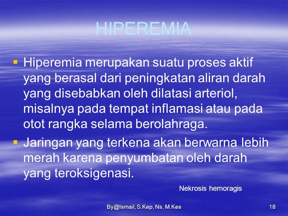 By@Ismail, S.Kep, Ns, M.Kes17 MACAM-MACAM EDEMA  Edema kardial  Edema renal  Edema kakektik  Edema toksis  Edema susunan saraf atau endokrin.