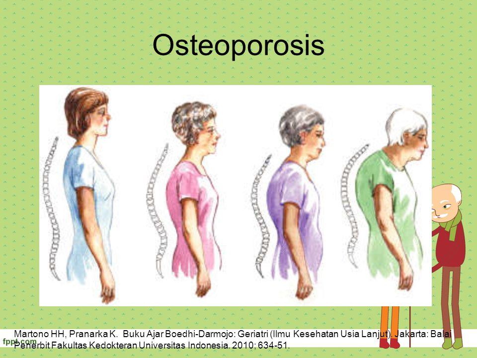 Osteoporosis Martono HH, Pranarka K. Buku Ajar Boedhi-Darmojo: Geriatri (Ilmu Kesehatan Usia Lanjut). Jakarta: Balai Penerbit Fakultas Kedokteran Univ