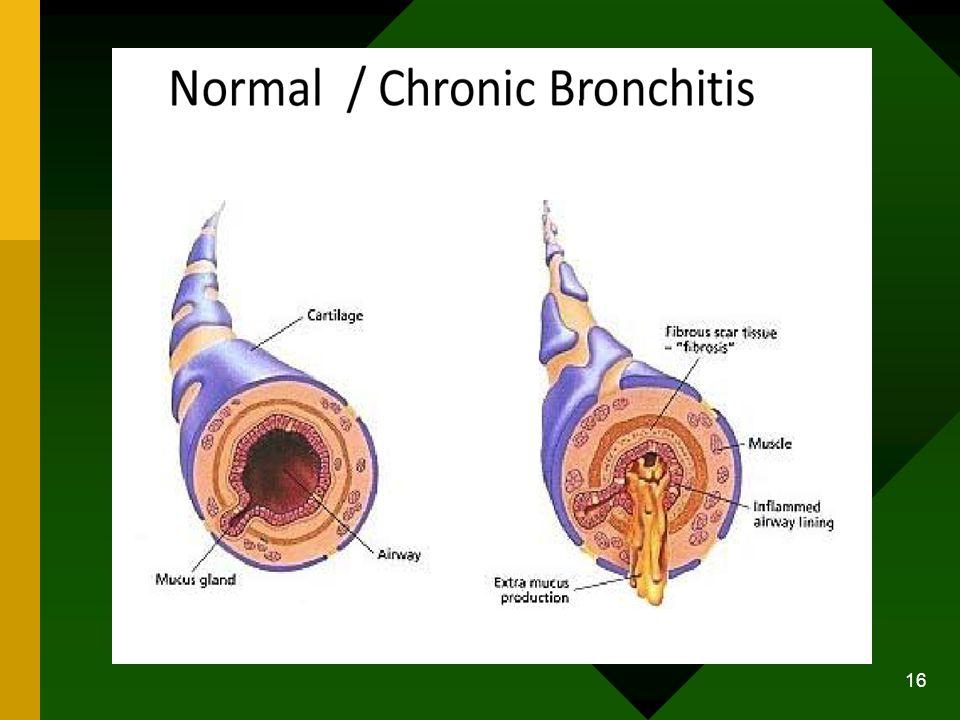 Manifestasi Klinik Penampilan umum: cenderung overweight, sianosis akibat pengaruh sekunder polisitemia, edema (akibat CHF kanan).