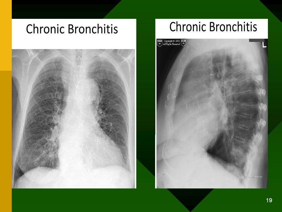 Manajemen Pengobatan utama ditujukan untuk mencegah, mengontrol infeksi, dan meningkatkan drainase bronkhial menjadi jernih.