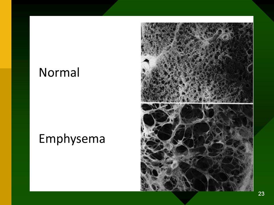Tipe Emfisema Terdapat tiga tipe dari emfisema: 1.