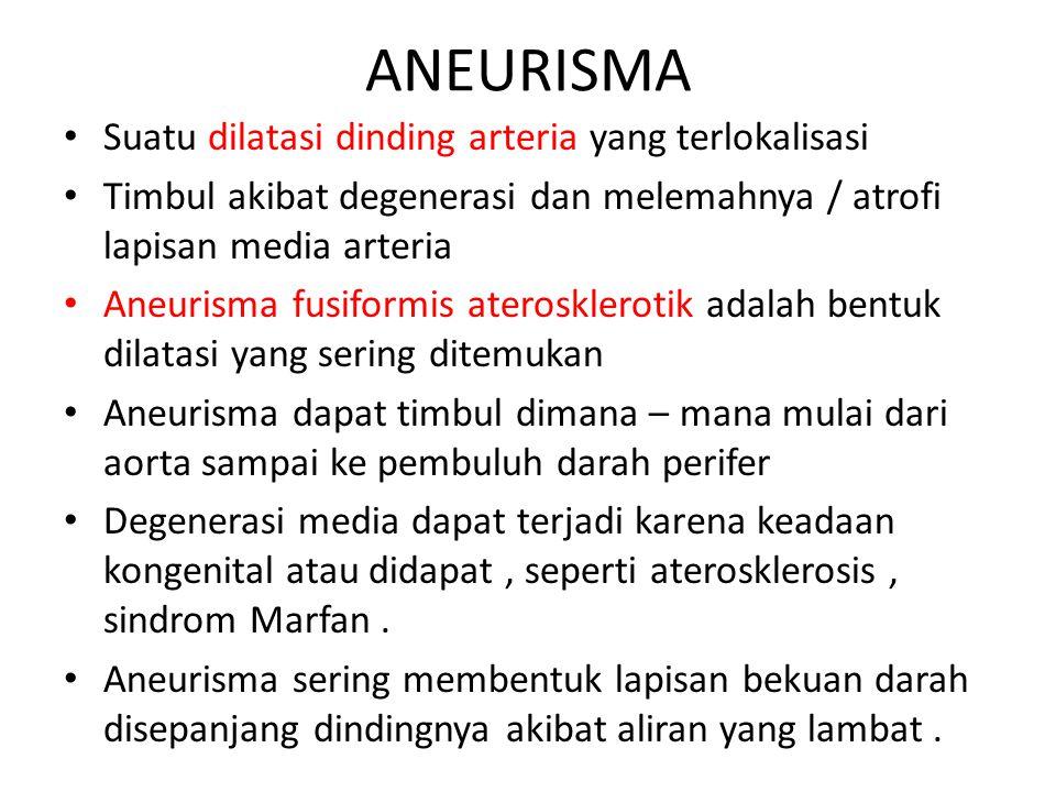 ANEURISMA Suatu dilatasi dinding arteria yang terlokalisasi Timbul akibat degenerasi dan melemahnya / atrofi lapisan media arteria Aneurisma fusiformi