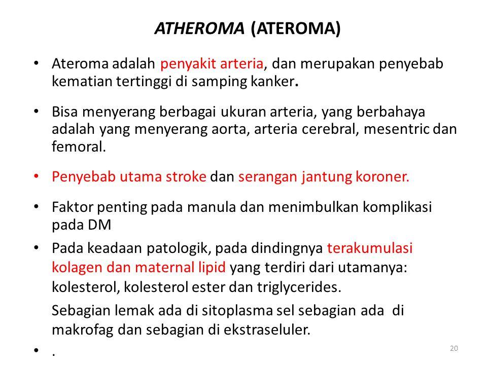 20 ATHEROMA (ATEROMA) Ateroma adalah penyakit arteria, dan merupakan penyebab kematian tertinggi di samping kanker. Bisa menyerang berbagai ukuran art