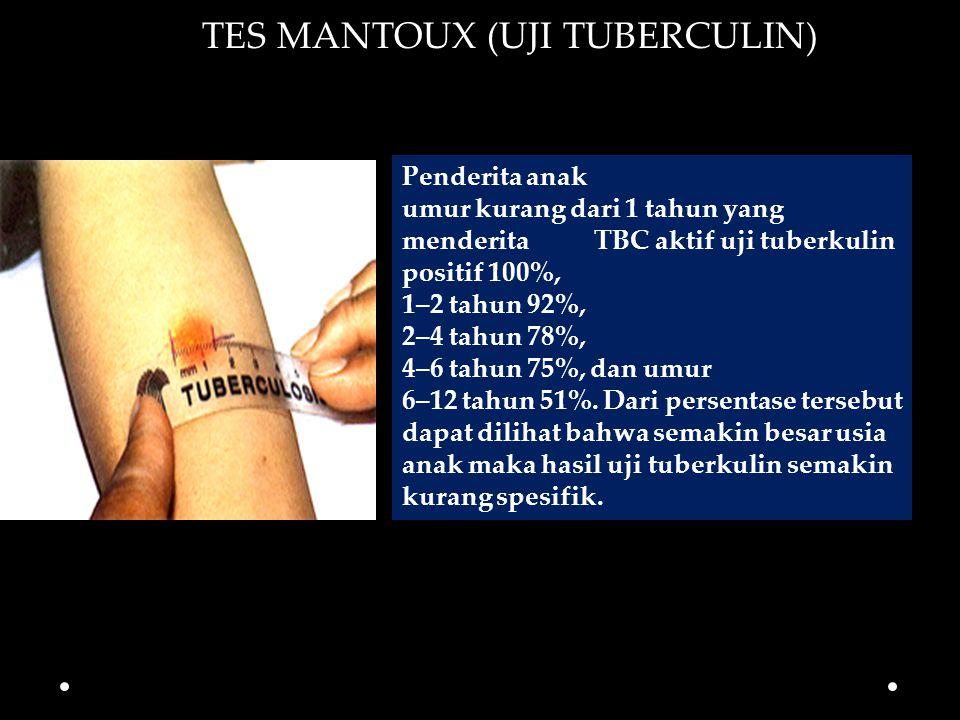 Penderita anak umur kurang dari 1 tahun yang menderita TBC aktif uji tuberkulin positif 100%, 1–2 tahun 92%, 2–4 tahun 78%, 4–6 tahun 75%, dan umur 6–12 tahun 51%.