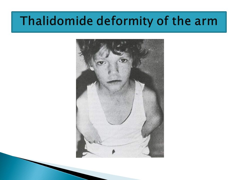 Thalidomide deformity of the arm