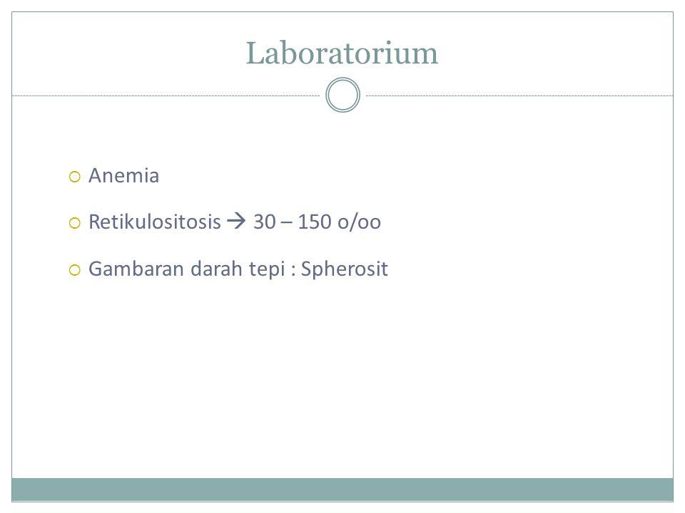 Laboratorium  Anemia  Retikulositosis  30 – 150 o/oo  Gambaran darah tepi : Spherosit