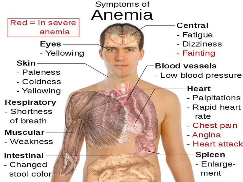 DISTRIBUSI ANEMIA ANEMIA Fe ANEMIA FOLAT ANEMIA B12 Balita, ibu hamil, ibu menyusui dan WUS Fase pertumbuhan, sosek rendah Vegetarian yang ketat, gang