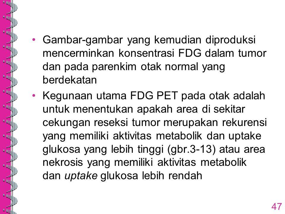 Gambar-gambar yang kemudian diproduksi mencerminkan konsentrasi FDG dalam tumor dan pada parenkim otak normal yang berdekatan Kegunaan utama FDG PET p