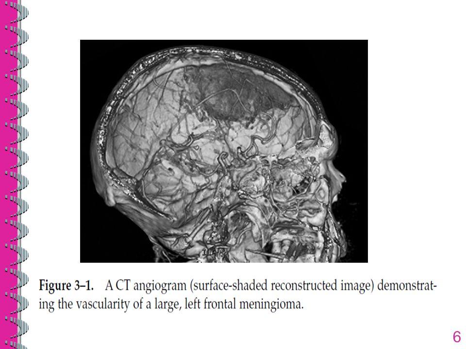 Gambar-gambar yang kemudian diproduksi mencerminkan konsentrasi FDG dalam tumor dan pada parenkim otak normal yang berdekatan Kegunaan utama FDG PET pada otak adalah untuk menentukan apakah area di sekitar cekungan reseksi tumor merupakan rekurensi yang memiliki aktivitas metabolik dan uptake glukosa yang lebih tinggi (gbr.3-13) atau area nekrosis yang memiliki aktivitas metabolik dan uptake glukosa lebih rendah 47