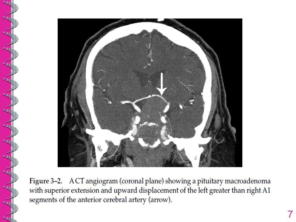8 Pada sistem vena, venografi digunakan untuk menilai struktur anatomi vena dalam hubungannya dengan tumor seperti meningioma (gbr 3-3) untuk menyingkirkan trombosis vena CT angiografi dan venografi memiliki manfaat lebih besar dibandingkan cateter angiografi karena tidak invasif dan tidak memiliki komplikasi seperti diseksi, stroke, hematom