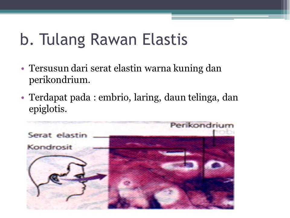 b. Tulang Rawan Elastis Tersusun dari serat elastin warna kuning dan perikondrium. Terdapat pada : embrio, laring, daun telinga, dan epiglotis.