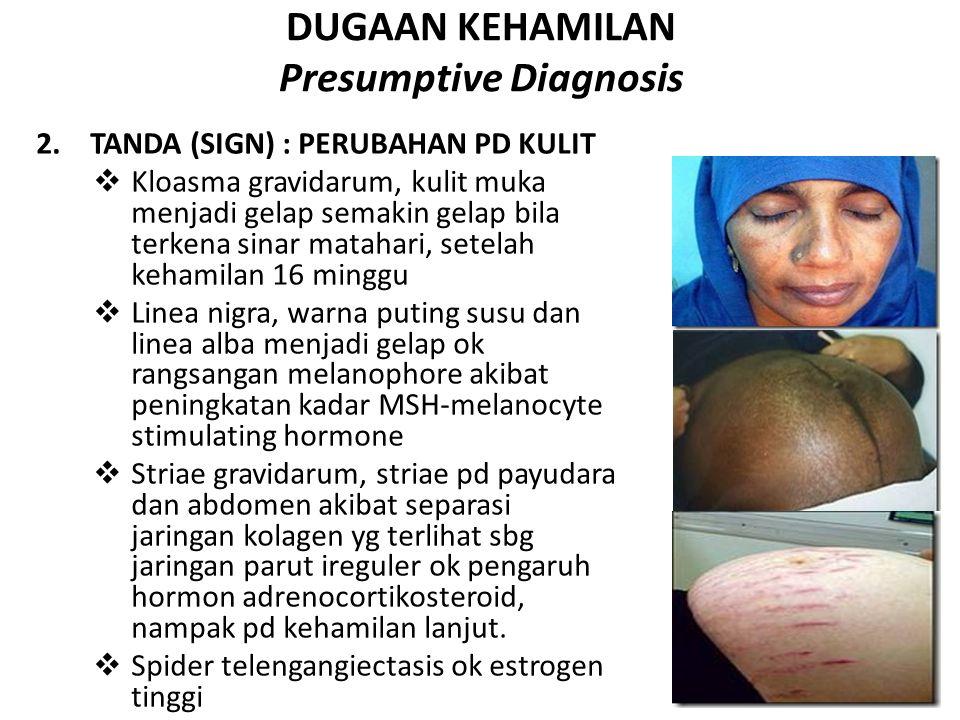 DUGAAN KEHAMILAN Presumptive Diagnosis 2.TANDA (SIGN) : PERUBAHAN PD KULIT  Kloasma gravidarum, kulit muka menjadi gelap semakin gelap bila terkena s