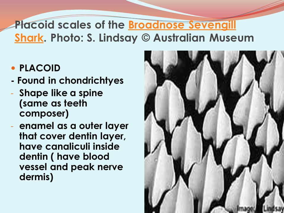 Placoid scales of the Broadnose Sevengill Shark. Photo: S. Lindsay © Australian MuseumBroadnose Sevengill Shark PLACOID - Found in chondrichtyes - Sha