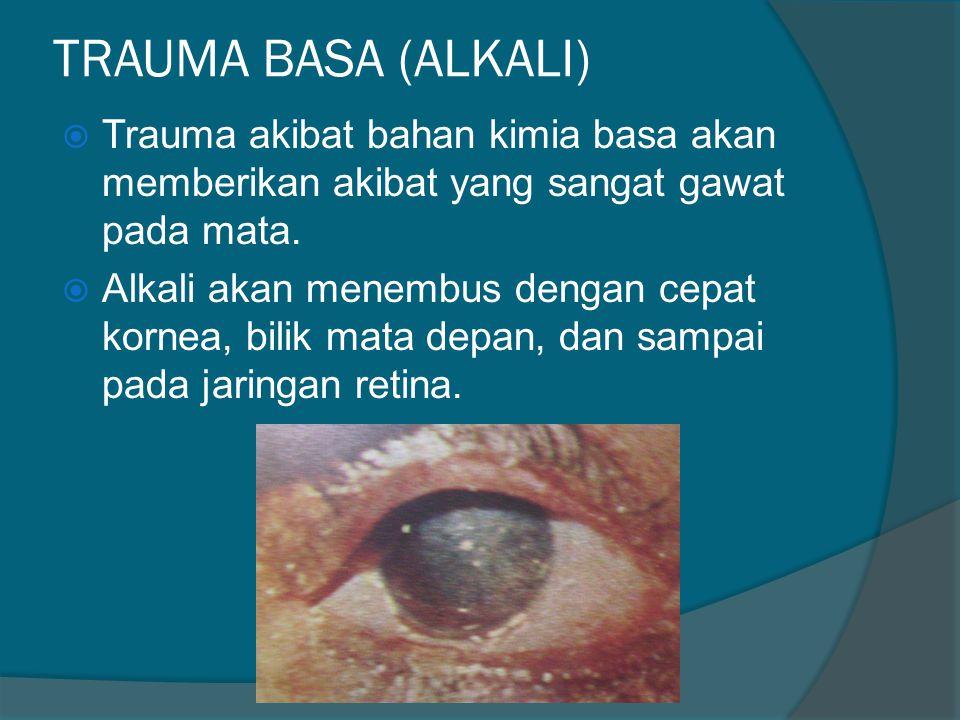 TRAUMA BASA (ALKALI)  Trauma akibat bahan kimia basa akan memberikan akibat yang sangat gawat pada mata.  Alkali akan menembus dengan cepat kornea,