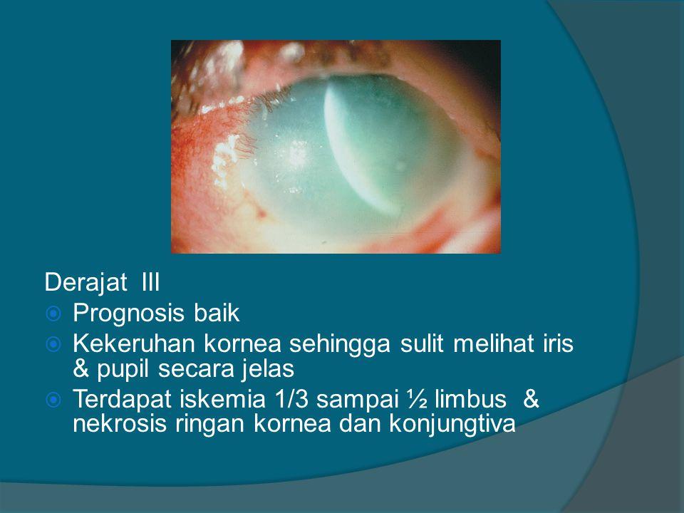 Derajat III  Prognosis baik  Kekeruhan kornea sehingga sulit melihat iris & pupil secara jelas  Terdapat iskemia 1/3 sampai ½ limbus & nekrosis rin