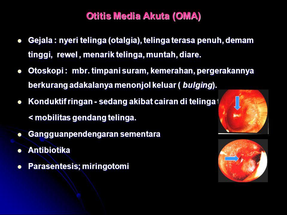 Otitis Media Akuta (OMA) Gejala : nyeri telinga (otalgia), telinga terasa penuh, demam tinggi, rewel, menarik telinga, muntah, diare. Gejala : nyeri t