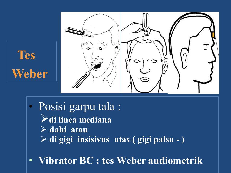 Posisi garpu tala :  di linea mediana  dahi atau  di gigi insisivus atas ( gigi palsu - ) Vibrator BC : tes Weber audiometrik Tes Weber