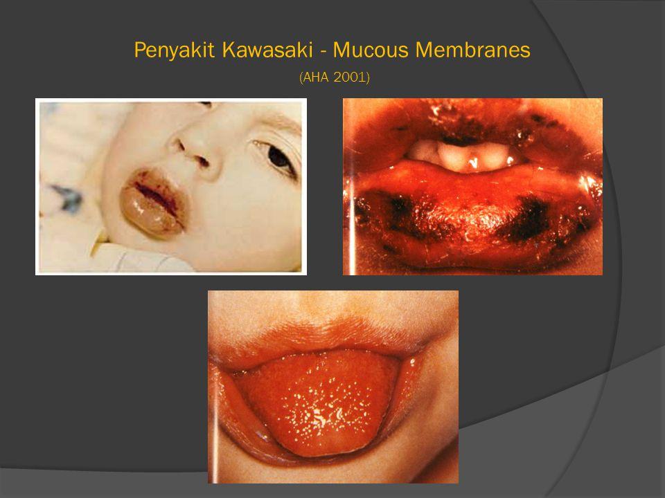 Penyakit Kawasaki - Mucous Membranes (AHA 2001)
