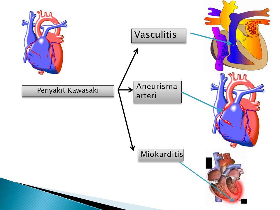 Penyakit Kawasaki Vasculitis Aneurisma arteri Aneurisma arteri Miokarditis