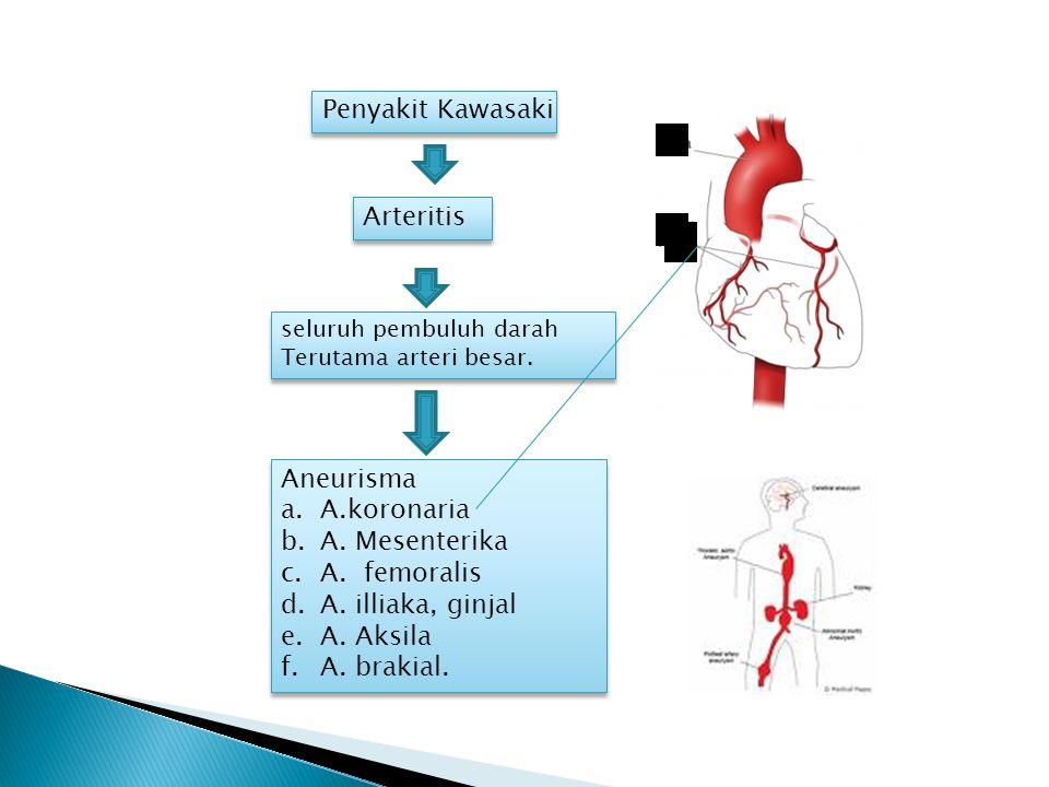 seluruh pembuluh darah Terutama arteri besar. seluruh pembuluh darah Terutama arteri besar.