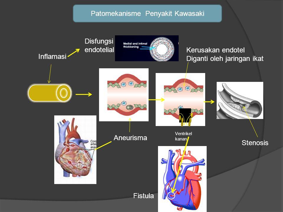Patomekanisme Penyakit Kawasaki Aneurisma Inflamasi Ventrikel kanan Fistula Kerusakan endotel Diganti oleh jaringan ikat Stenosis Disfungsi endotelial