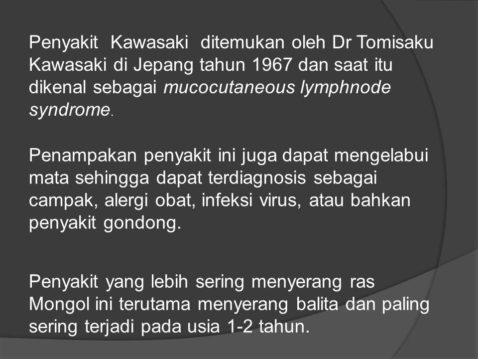 Penyakit Kawasaki ditemukan oleh Dr Tomisaku Kawasaki di Jepang tahun 1967 dan saat itu dikenal sebagai mucocutaneous lymphnode syndrome.